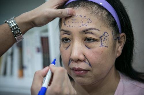 phẫu thuật căng da mặt nội soi