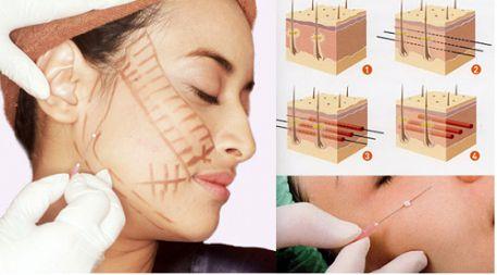 căng da mặt chỉ sinh học