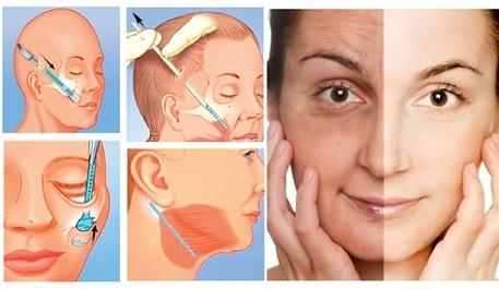 căng da mặt nội soi là gì