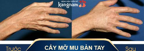 mu bàn tay là phần nào