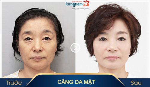 biến chứng của căng da mặt