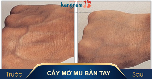 mu bàn tay