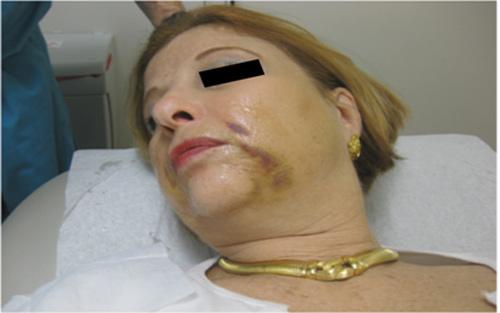 tác hại của căng da mặt