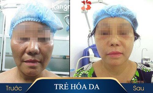 hậu quả của căng da mặt