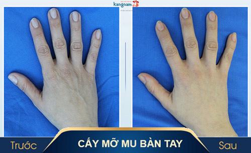thẩm mỹ đôi bàn tay