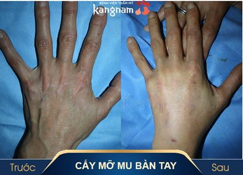 cấy mỡ bàn tay