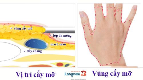 xem bói mu bàn tay