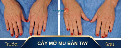 mu bàn tay là gì