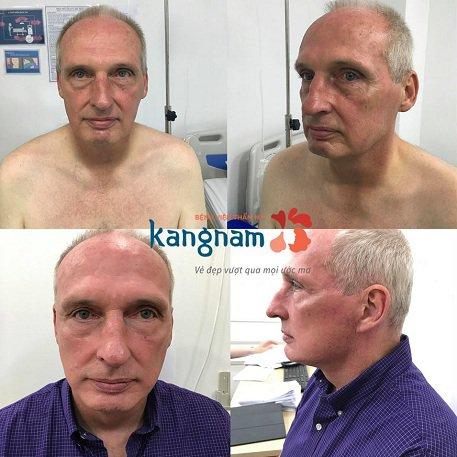 căng da mặt cho nam giới kangnam