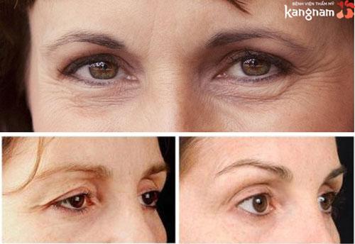 căng da vùng mắt