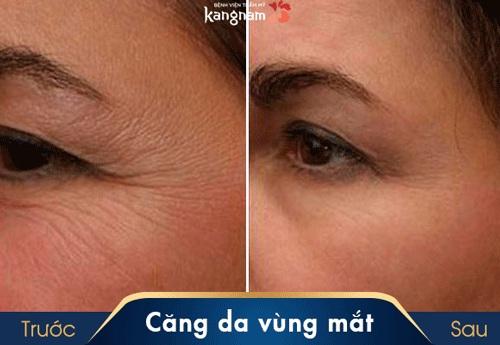 cách làm căng vùng da dưới mắt