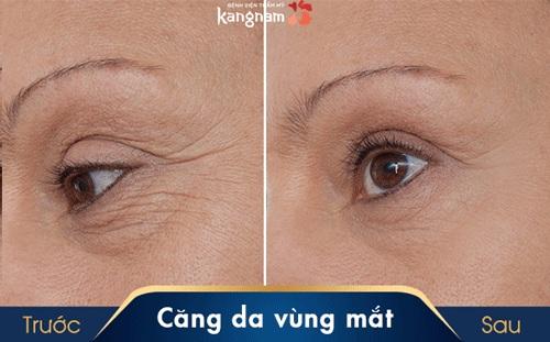 làm căng vùng da quanh mắt