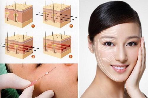 cách chữa nhăn da mặt