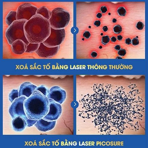 trẻ hóa da mặt bằng laser picosure