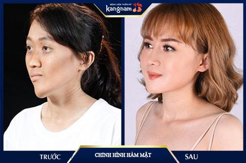 giá nâng mũi kangnam