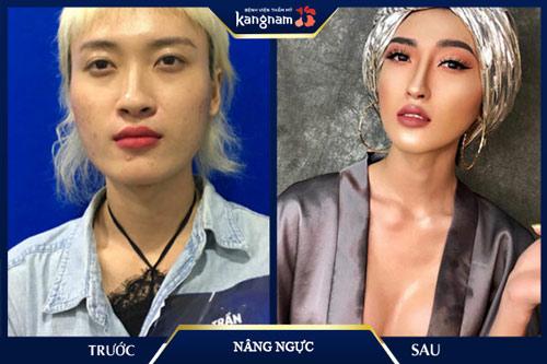 thẩm mỹ kangnam tphcm